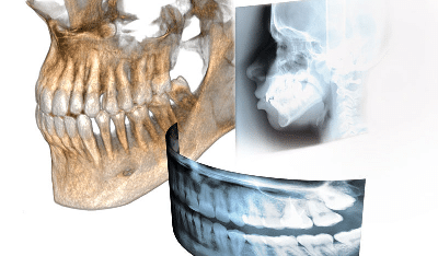 3D Imaging Dentist Denture Dandenong Griffith